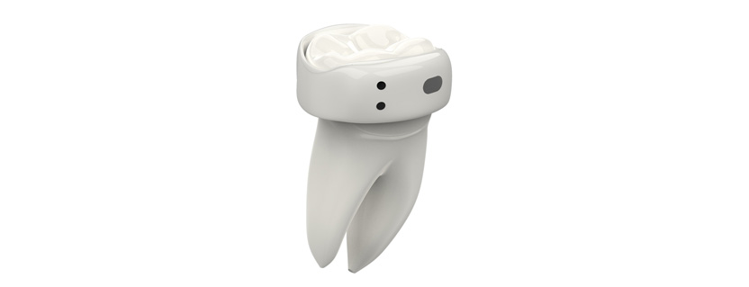 Bluetooth LE wireless monitor enables continuous oral health management